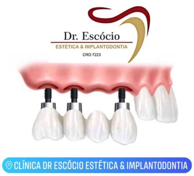 Clínica Dr. Escócio Estética & Implantodontia