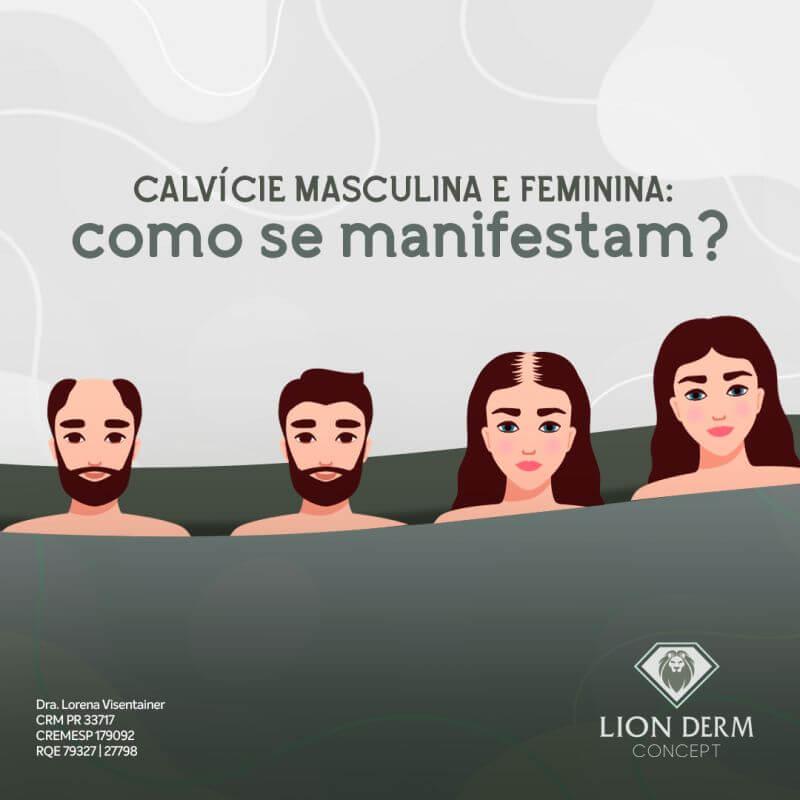 TRANSPLANTE CAPILAR: diferenças da CALVÍCIE em HOMENS x MULHERES