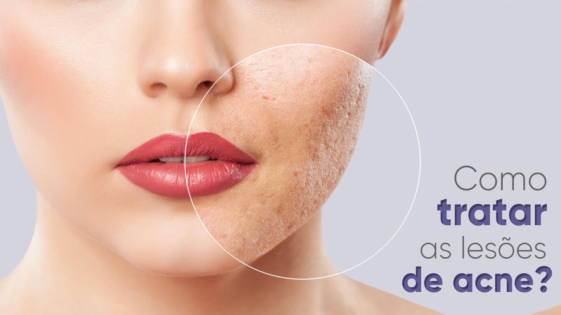 Cicatriz de acne: Quais tratamentos podem amenizar?