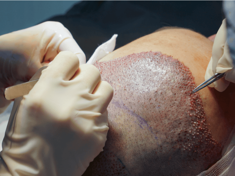 RESTAURAÇÃO CAPILAR : Entenda os principais termos usados nesse procedimento