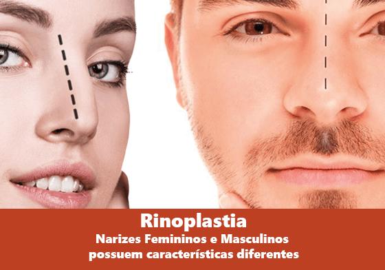 Rinoplastia:  Narizes Femininos e Masculinos possuem características diferentes.