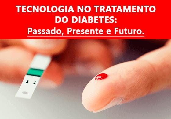 Tecnologia no Tratamento do Diabetes: Passado, Presente e Futuro.