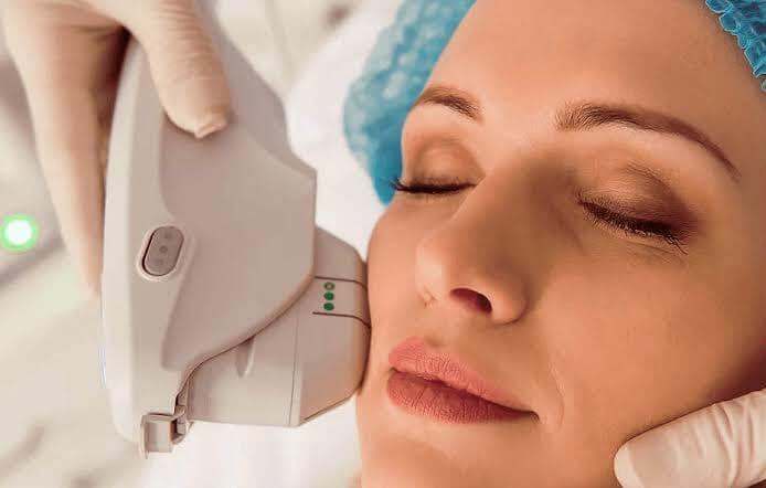 Lifting facial sem cirurgia:  Conheça o Ulthera, uma forma de ultrassom microfocado.