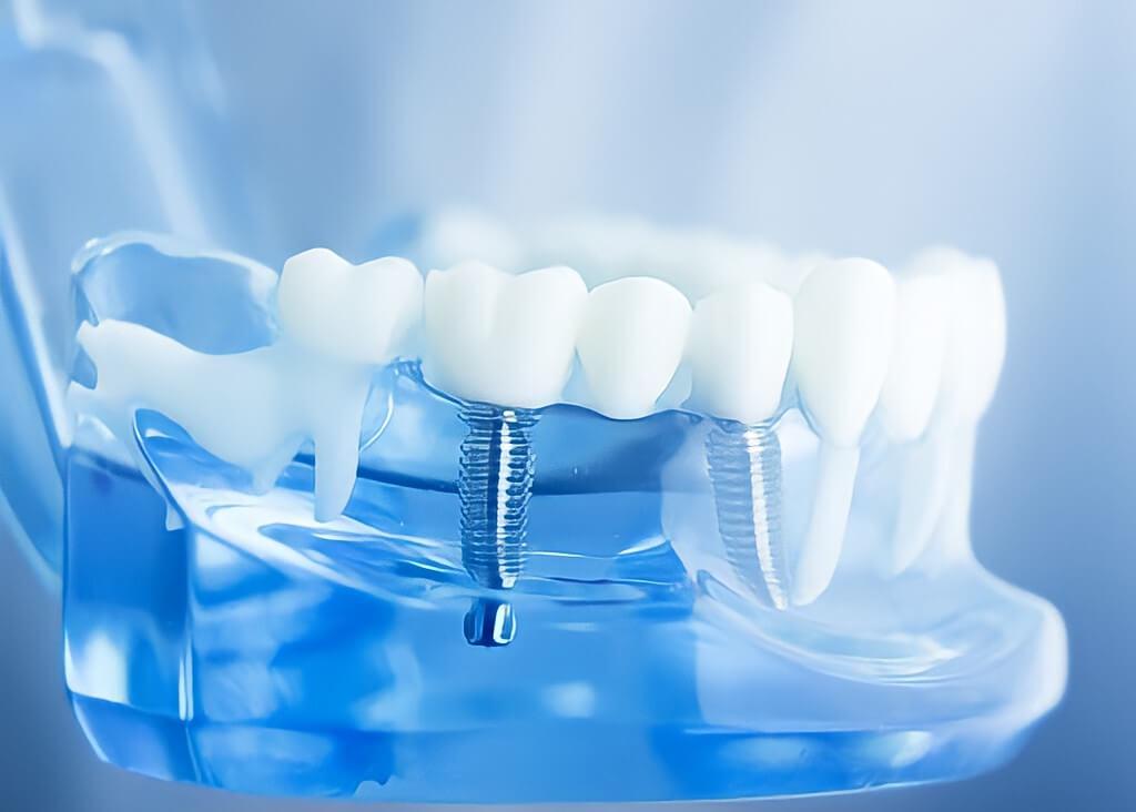 5 razões para realizar seu implante e mudar o seu sorriso.