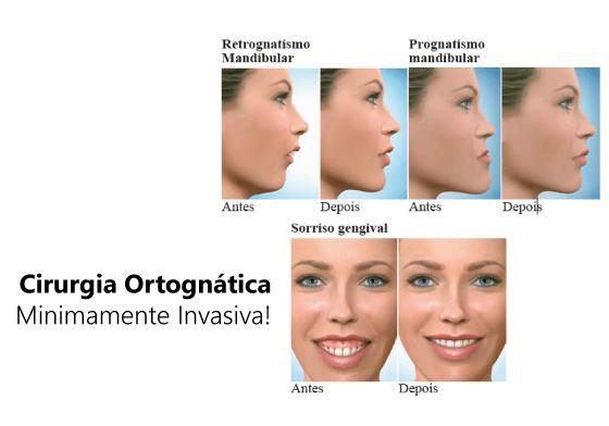 Cirurgia Ortognática Minimamente Invasiva