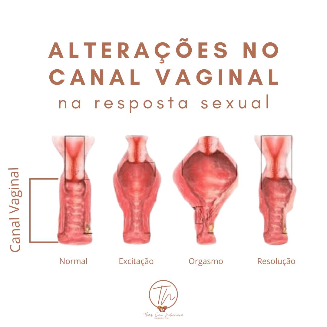 Alterações no canal vaginal na resposta sexual