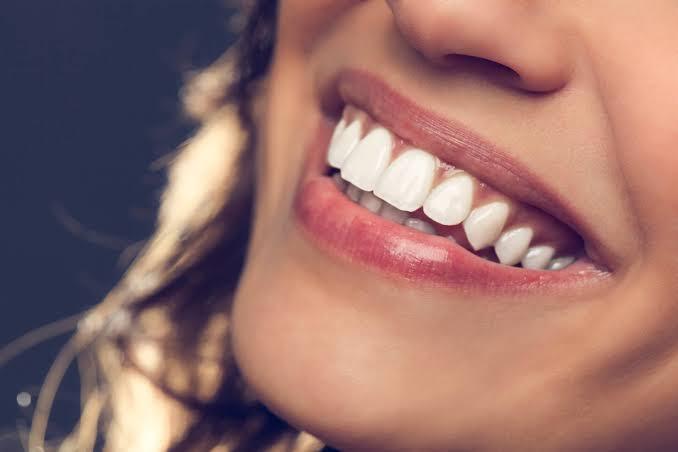 Lentes de Contato Dental X Facetas de porcelana