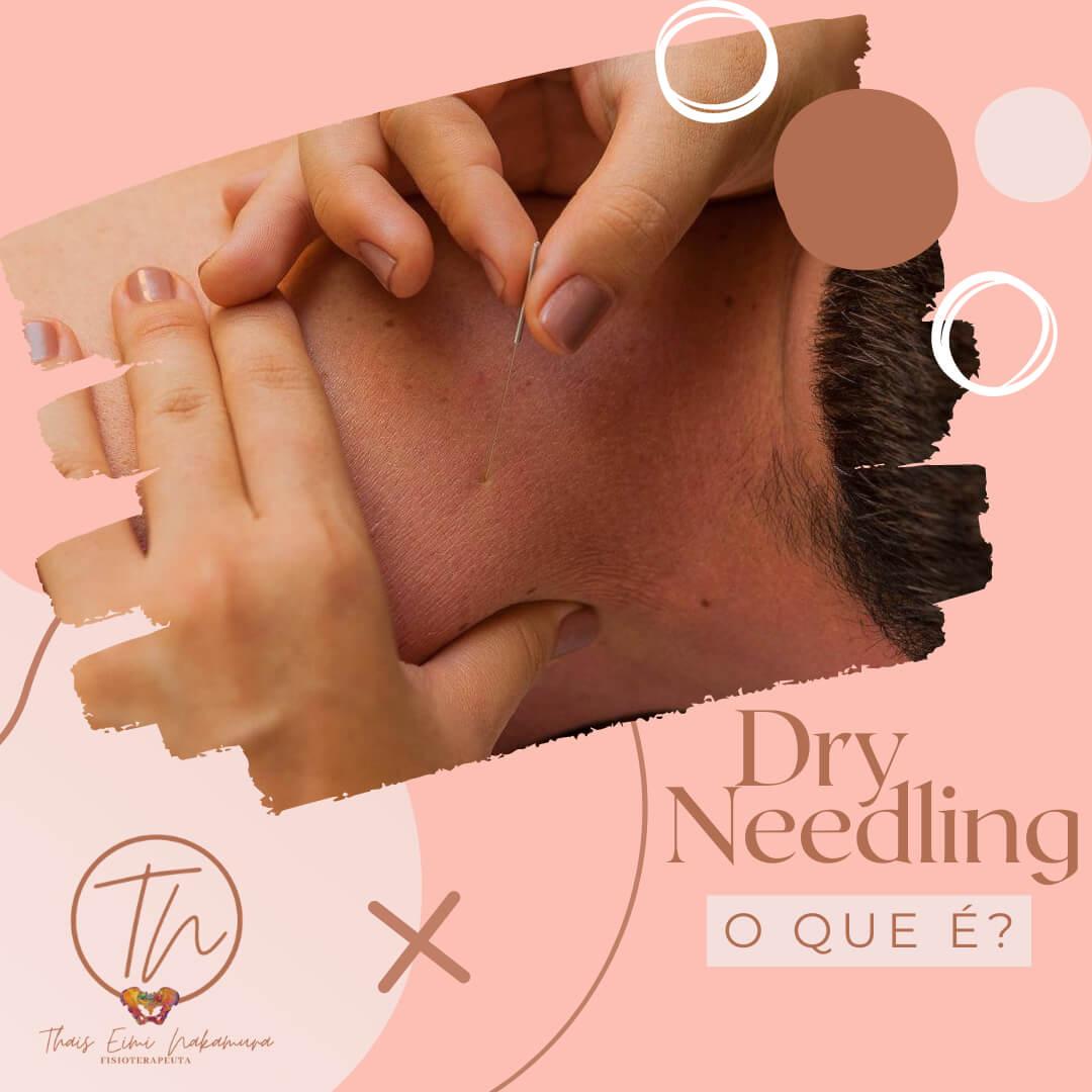Dry needling, o que é?