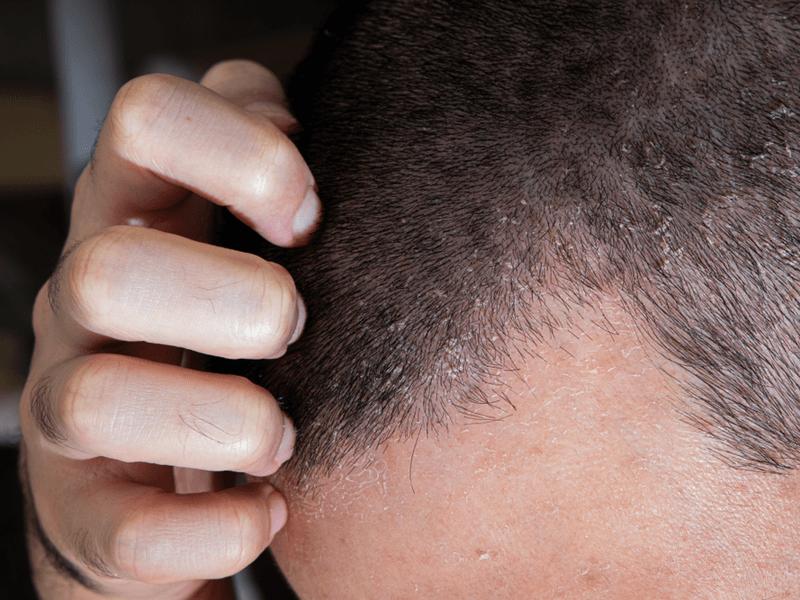 Limpeza do couro cabeludo: Conheça os benefícios da Esfoliação Capilar